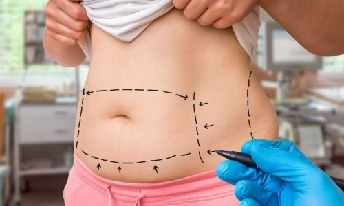 Body Wrap For Weight Loss &Things You Should Know About Weight Loss
